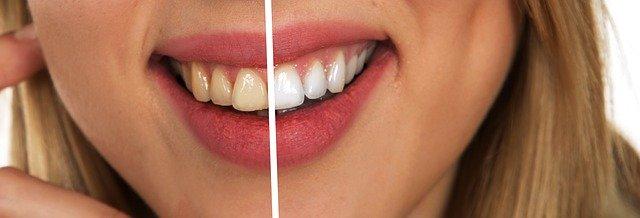 ציפויי שיניים